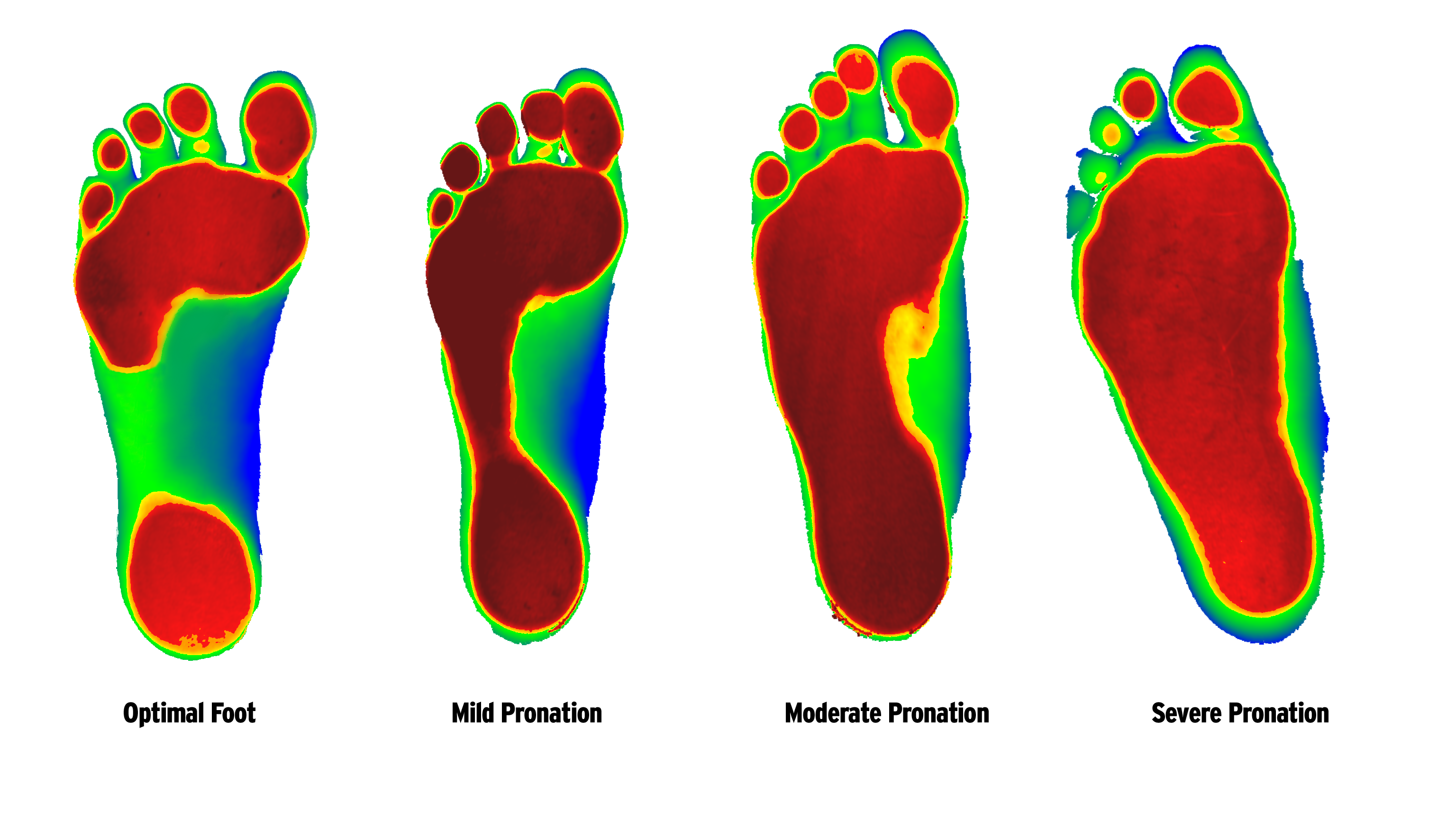 Foot Ranging From Least Severe To Most According To 3D Foot Scan